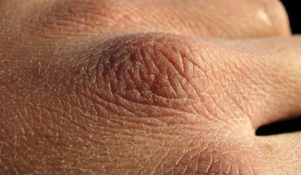 Bajas temperaturas pueden desencadenar o agravar enfermedades de la piel