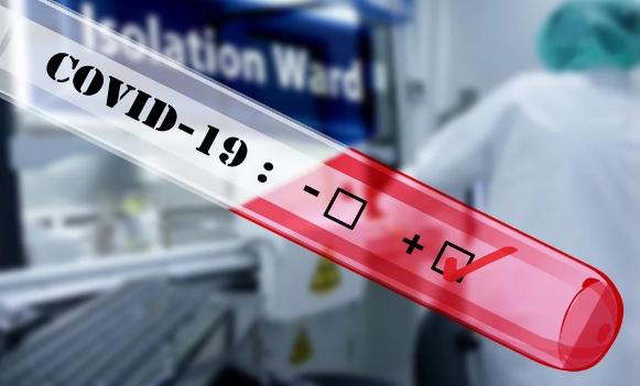 los casos positivos de COVID-19 aumentan a 689 en el estado; 5 más muertos